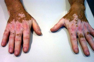 El blanqueamiento de la piel de los codos