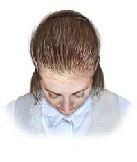 La cabeza se rasca y caen los cabellos en la nuca