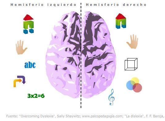 La Dislexia Se Presenta Por Un D  Ficit En El Hemisferio Izquierdo Del