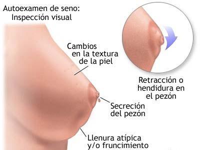 Breast examen masculino auto